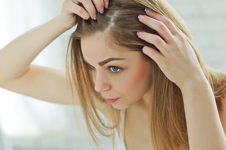 Выпадение волос: причины и восстановление