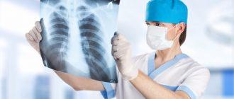Преимущества услуги «рентген на дому»