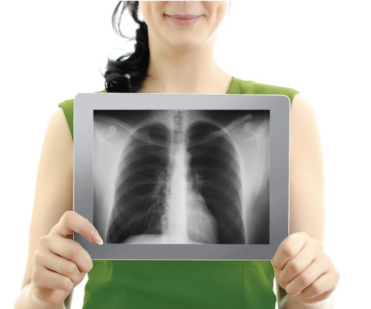 Флюорографическое обследование лёгких